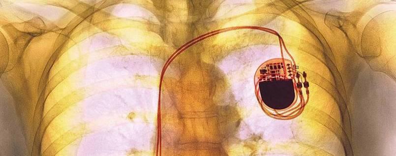 Lebensrettende Medizintechnik fehlt