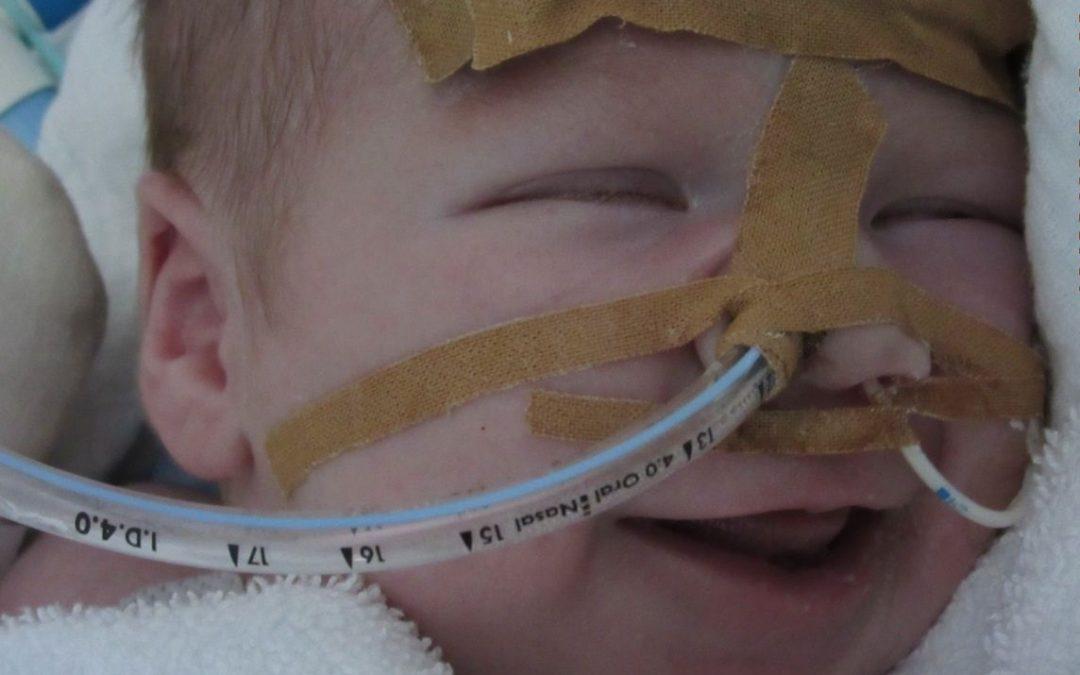 Maxi – Pflegenotstand Kinderintensivpflege